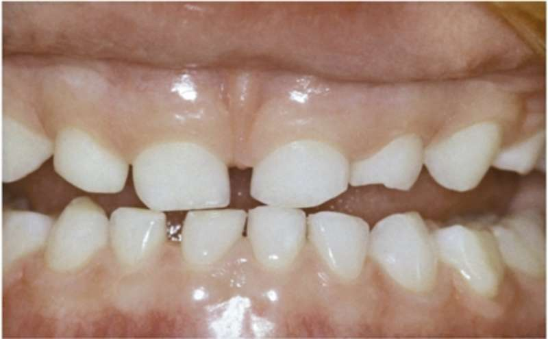 weiße flecken zähne calciummangel